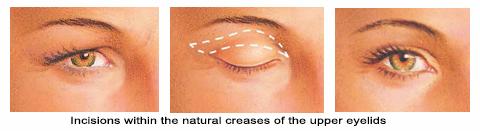 Upper eyelids1